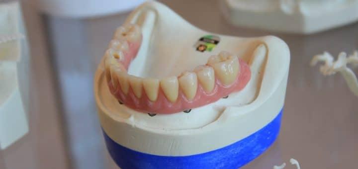 Prothèse dentaire pour mâchoire complète avec implants